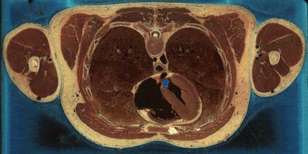 thorax.jpg 836×417 pixels