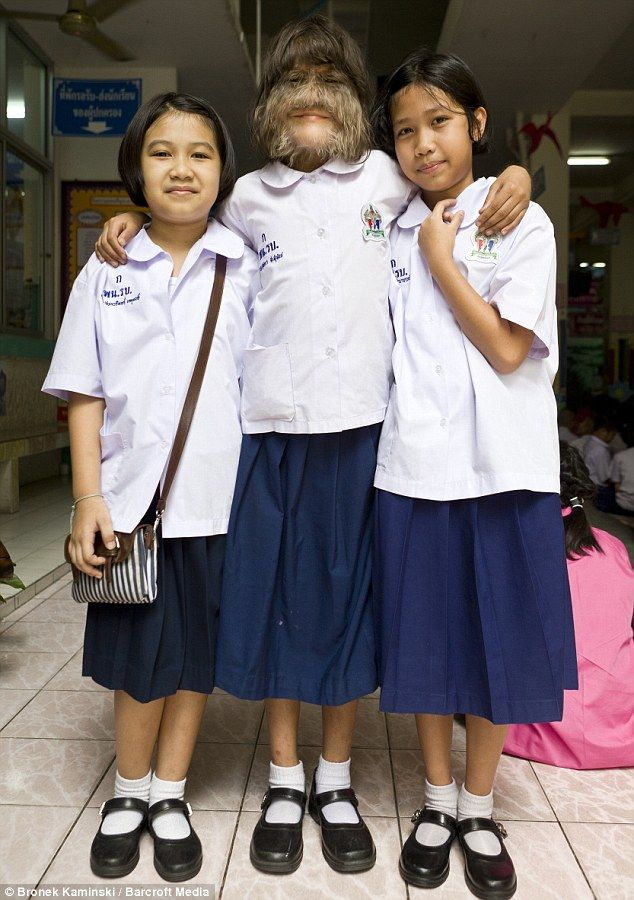 Happy To Be Hairy 11-Year Old Thai Girl Makes It Into Guinness Book Of World Records As Worlds Hairiest Girl - ThisIs50.com