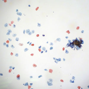 Pap Smear - Normal (or Negative) on Flickr - Photo Sharing!