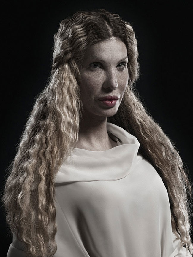 Confronting portraits of extreme plastic surgery by Phillip Toledano (NSFW) » Lost At E Minor: For creative people