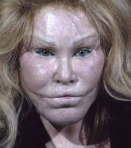 Dlisted  I Guess It Was Jocelyn Wildenstein's Man's Turn To Get Arrested For Being A Violent Mess