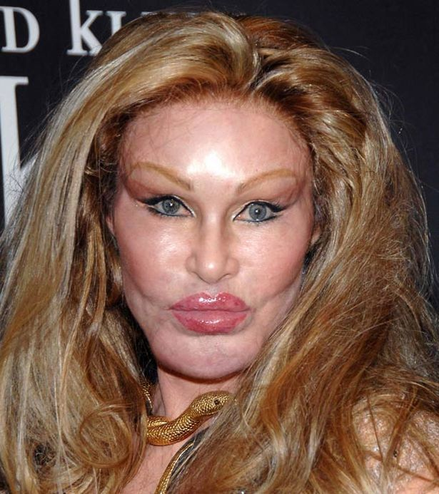 Terrifying mugshot of billionaire 'Bride of Wildenstein' released after she 'attacked boyfriend with hot wax and scissors' - Mirror Online