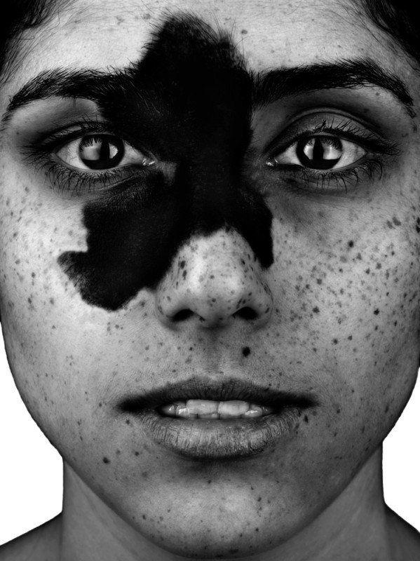 PortraitsofPeoplewithanUltra-RareTypeofBody-CoveringBirthmark