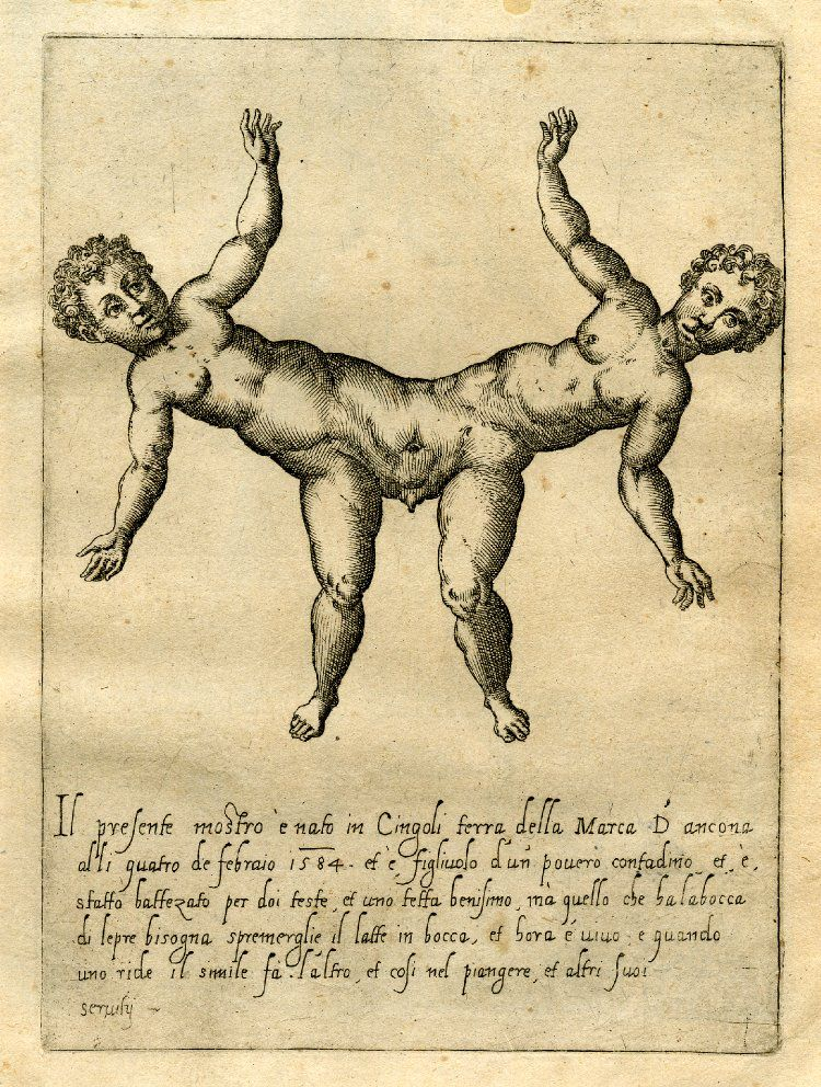 Flickr Photo Download: Male twins conjoined at the pelvis